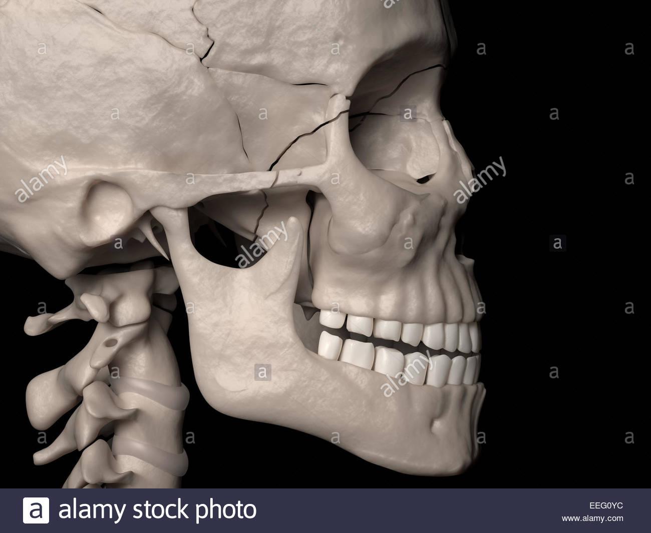 Illustration médicale numérique représentant une fracture complexe de la  classe III LeFort (fracture Photo Stock 5b0146ca0e5