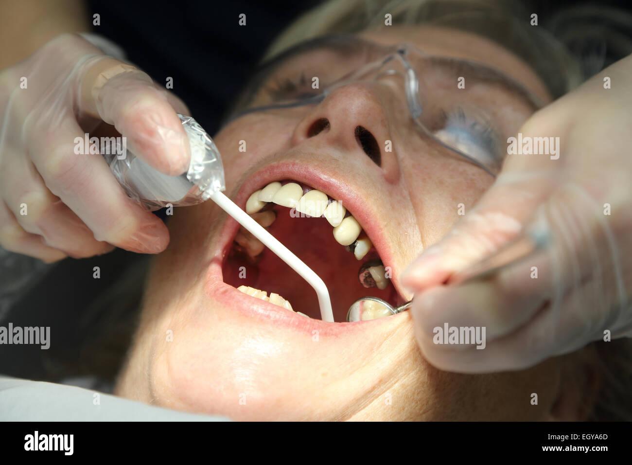 Femme au dentiste - modèle libéré Photo Stock