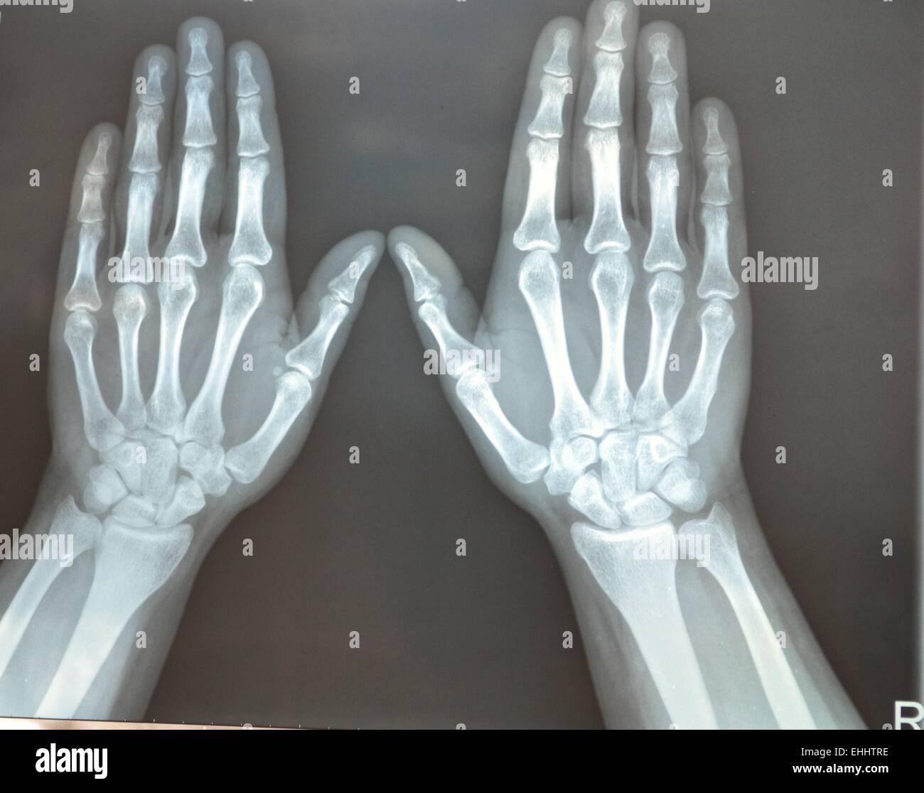 X-ray Photo Stock