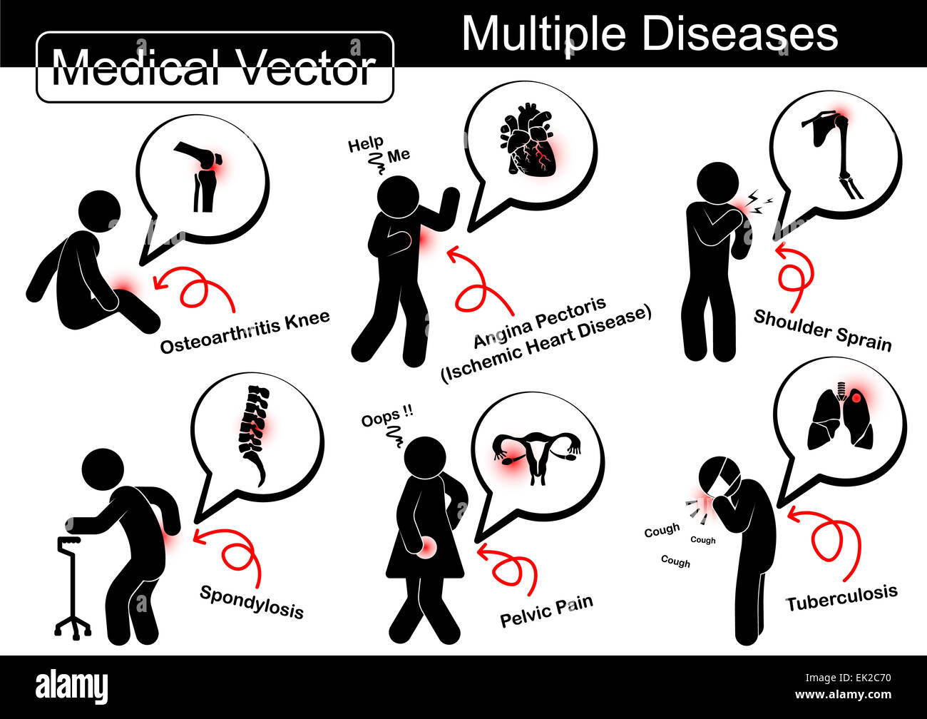 Plusieurs maladies ( Arthrose genou , la maladie cardiaque ...