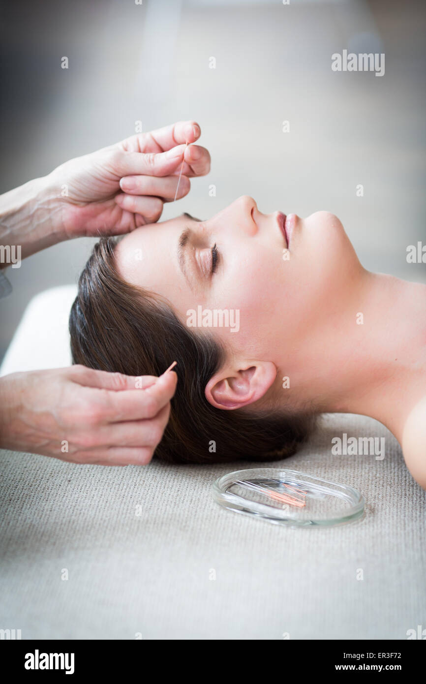 Woman receiving acupunture. Photo Stock