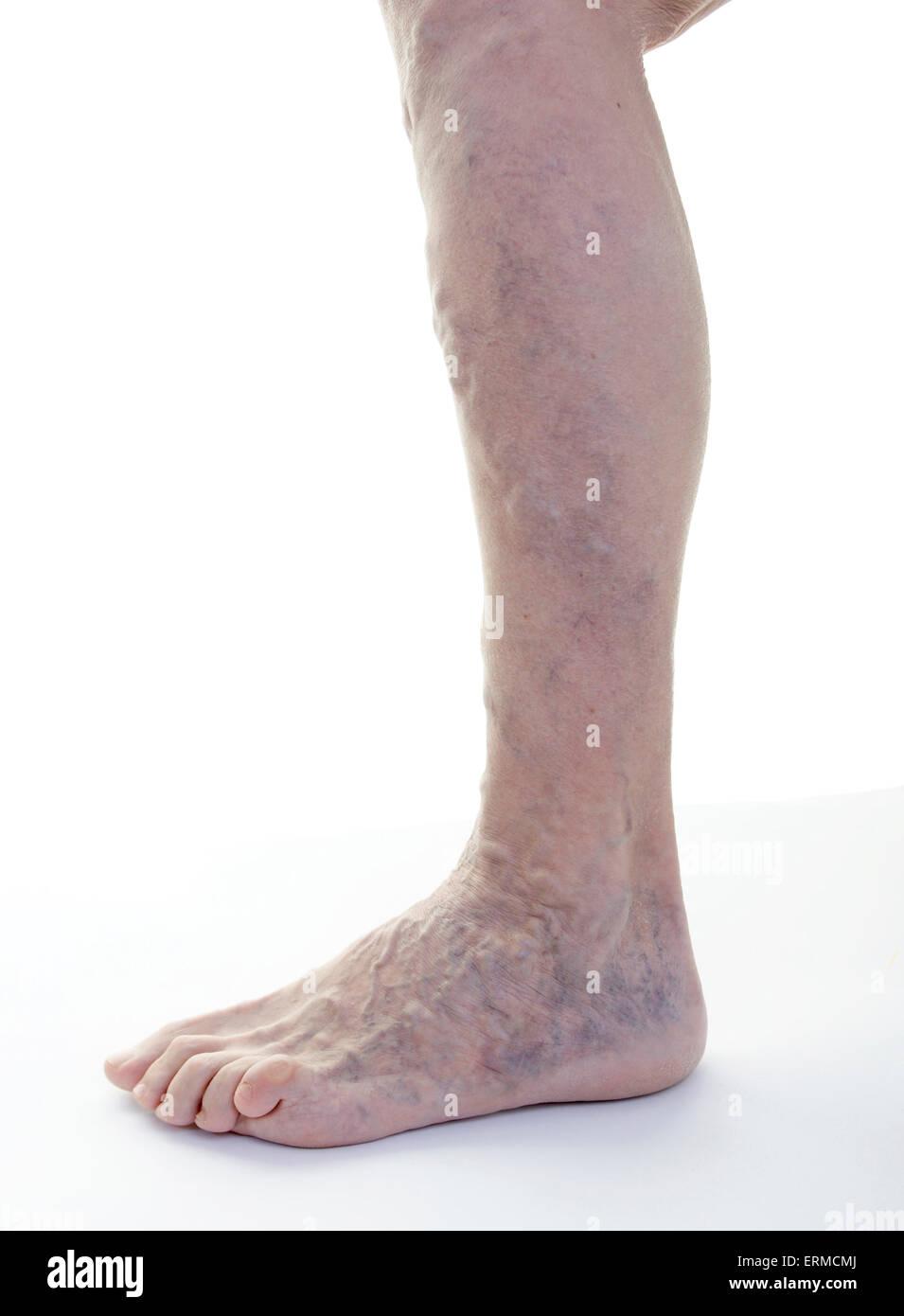 Varices jambe (femme, l'âge de 68 ans) / Krampfadern Varizen suis Bein (Frau, modifier 68 Jahre) Photo Stock