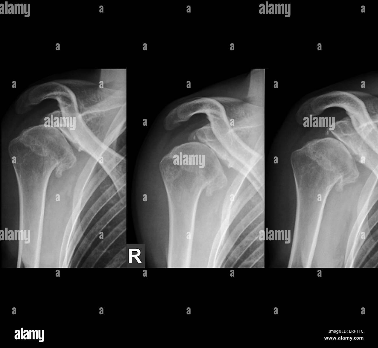 Radiographies de l'épaule droite d'un patient de 36 ans qui a, à maintes reprises, la luxation de l'articulation. Banque D'Images