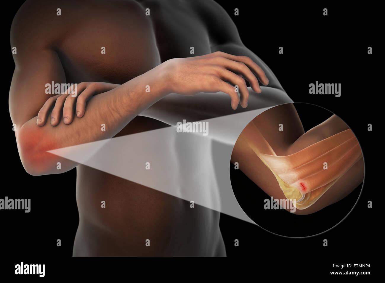 Illustration du bras avec peau transparente pour montrer un dommage à l'épicondyle latéral du Photo Stock