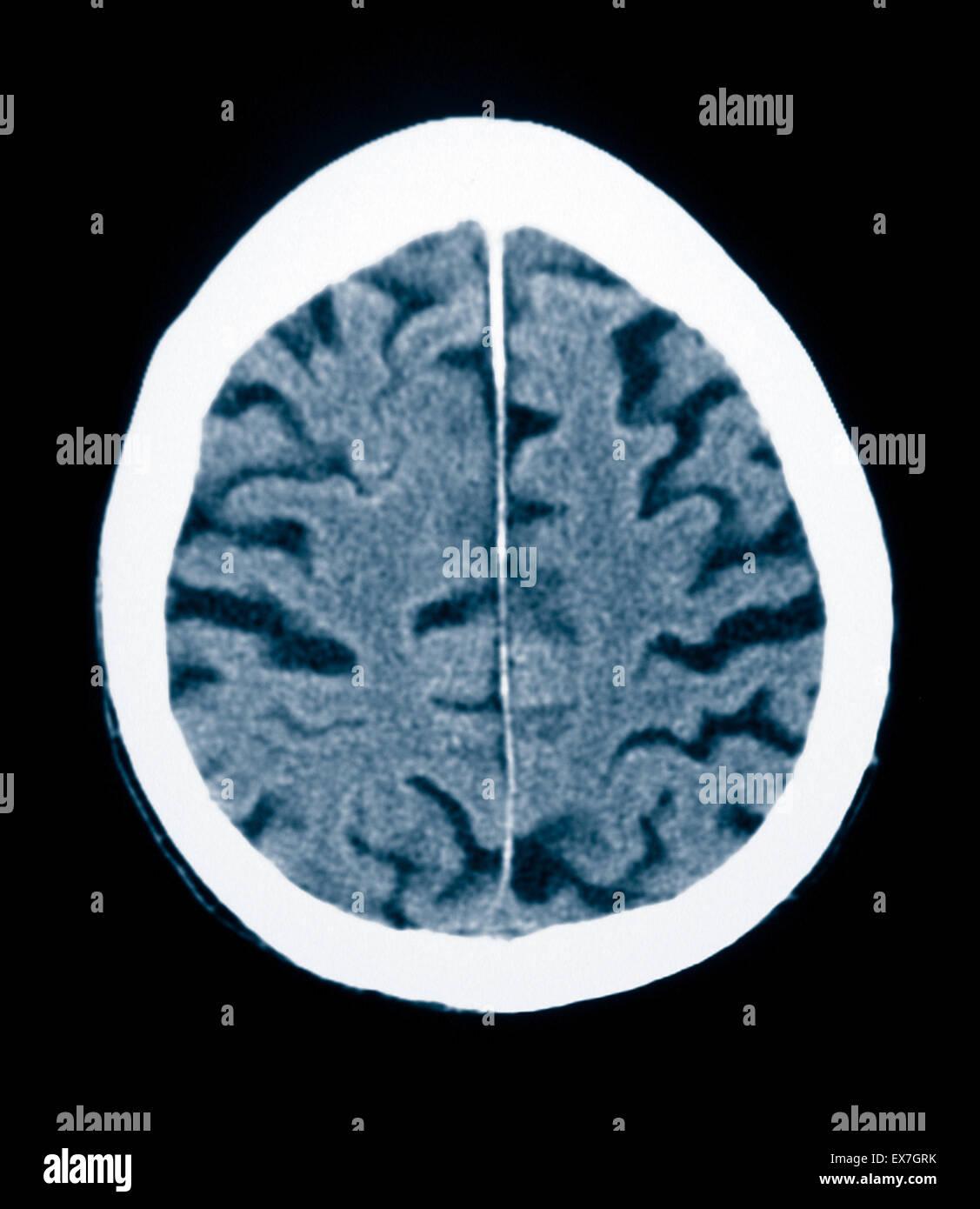 CT scan d'un vieil homme de 84 ans souffrant de la maladie d'Alzheimer. La TDM montre l'atrophie du Photo Stock
