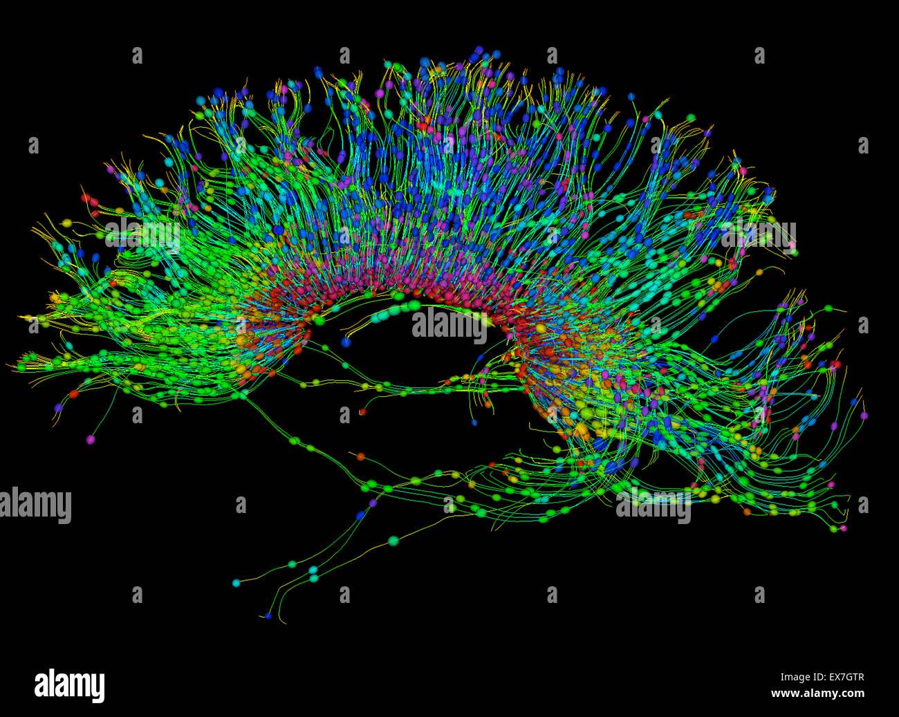 Tractographie des fibres de droit du cerveau humain Photo Stock