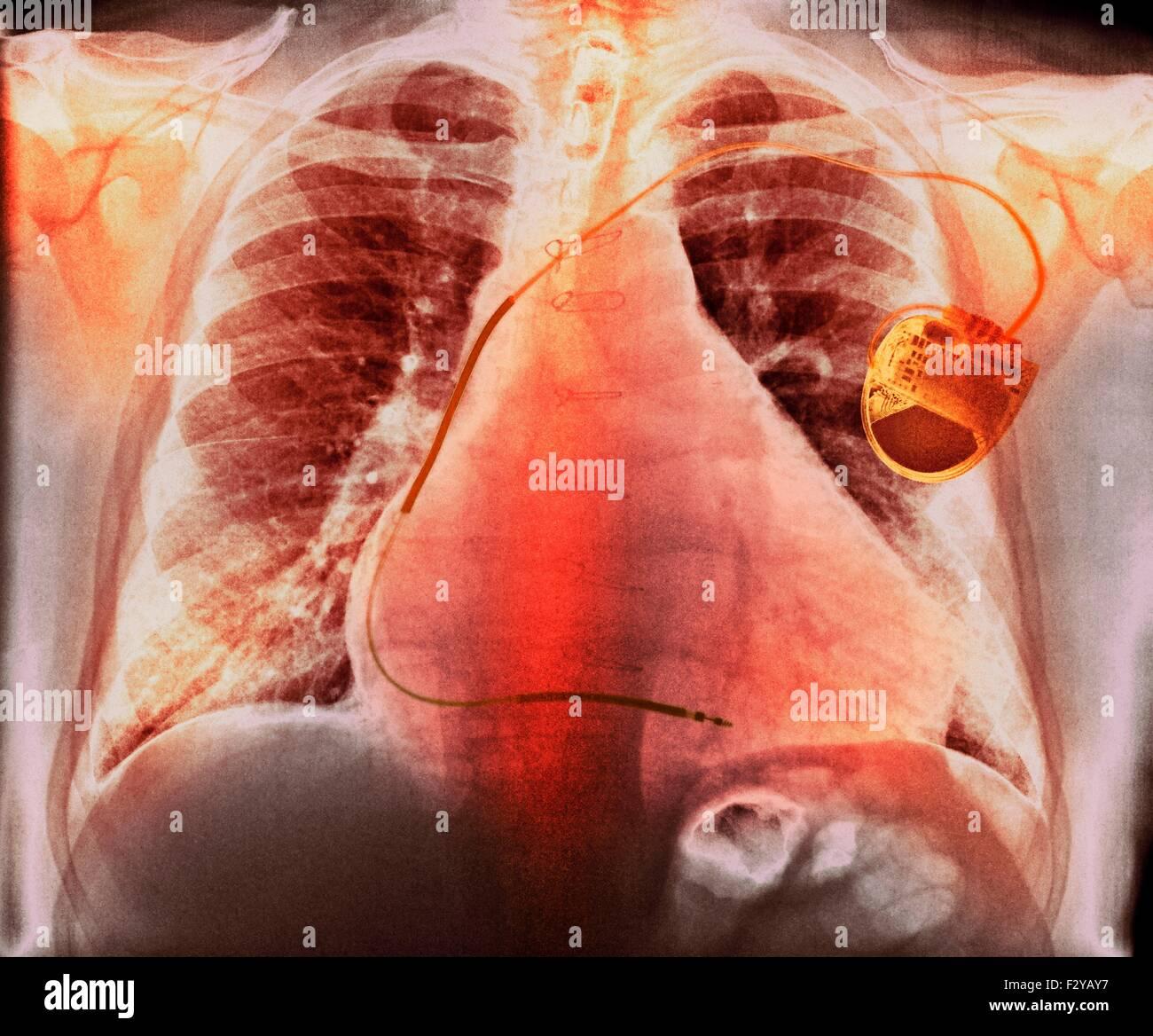Stimulateur cardiaque dans la maladie de coeur. Poitrine de couleur X-ray montrant un stimulateur cardiaque (droite) Photo Stock