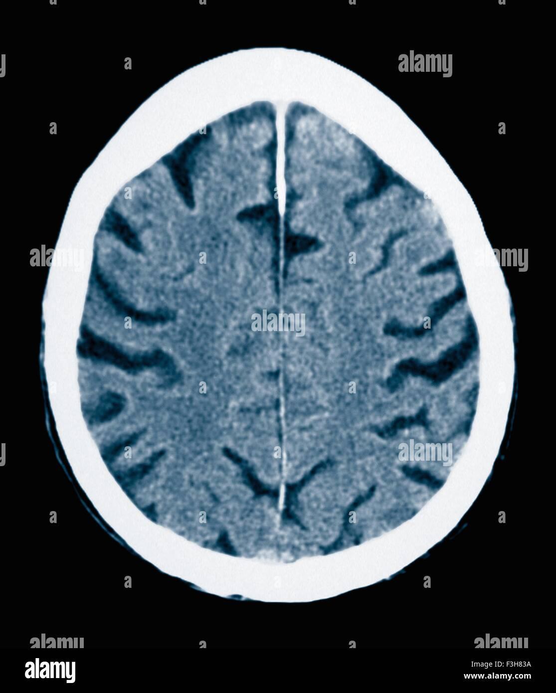 CT scan 84 ans homme à la maladie d'Alzheimer. La TDM montre l'atrophie du cerveau avec de petites Photo Stock