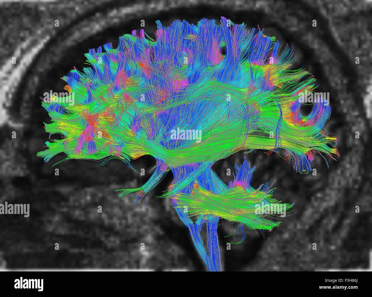 L'IRM de diffusion, également appelé l'imagerie du tenseur de diffusion ou DTI, du cerveau humain Photo Stock