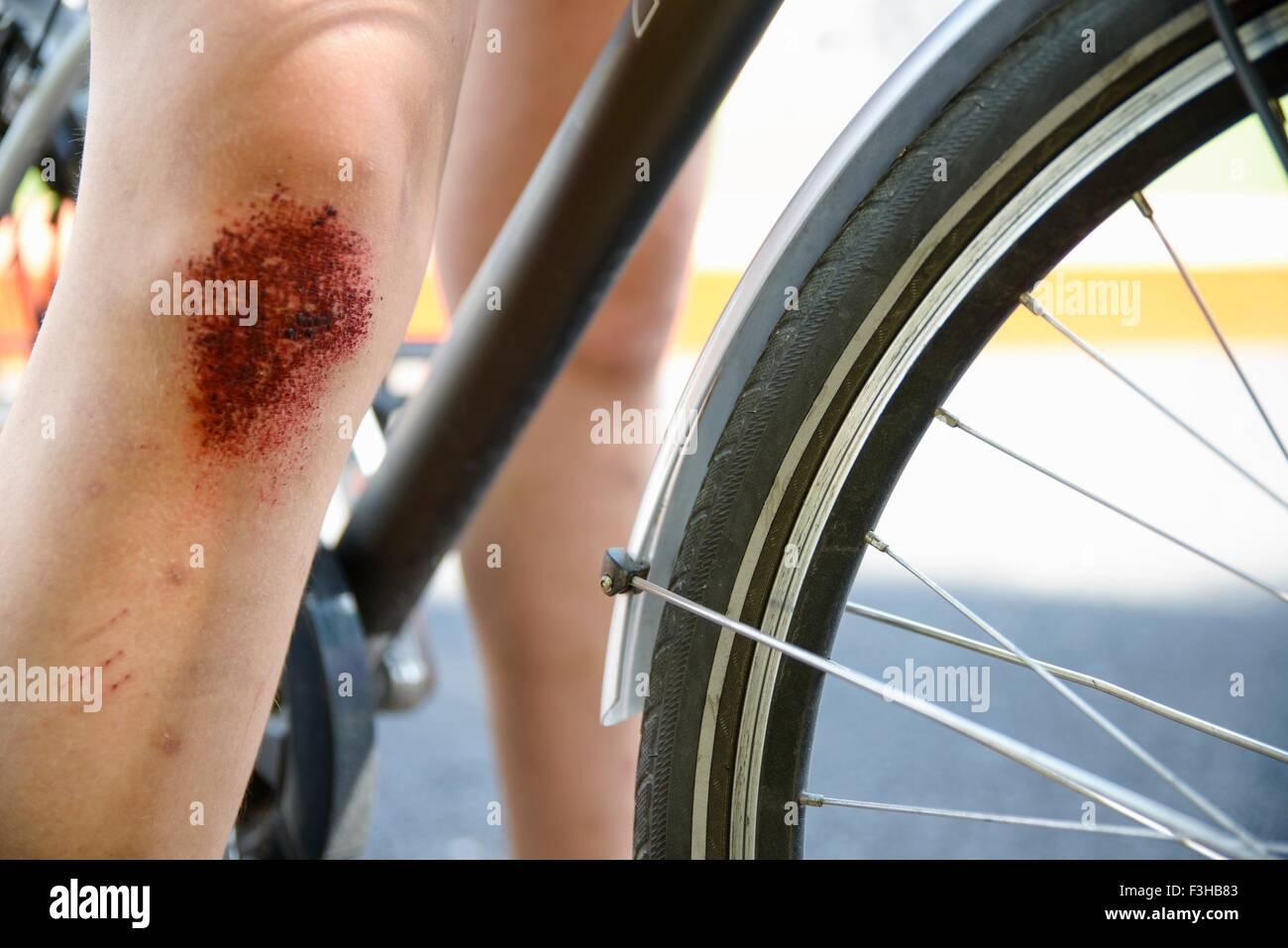 Portrait de location et les filles avec la jambe du genou éraflé Photo Stock