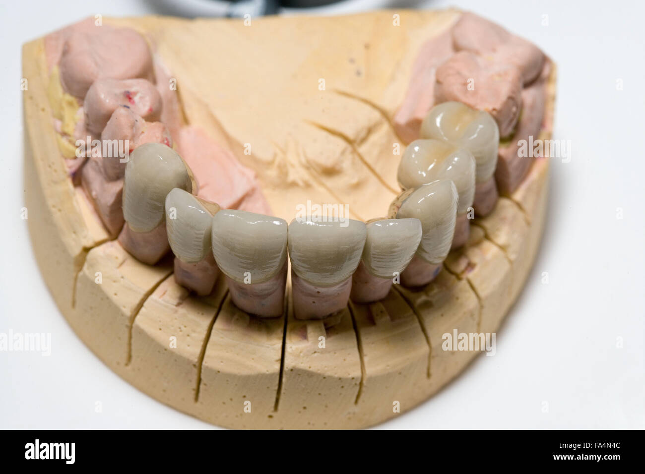 Empreinte dentaire de mâchoire avec couronne, Photo Stock