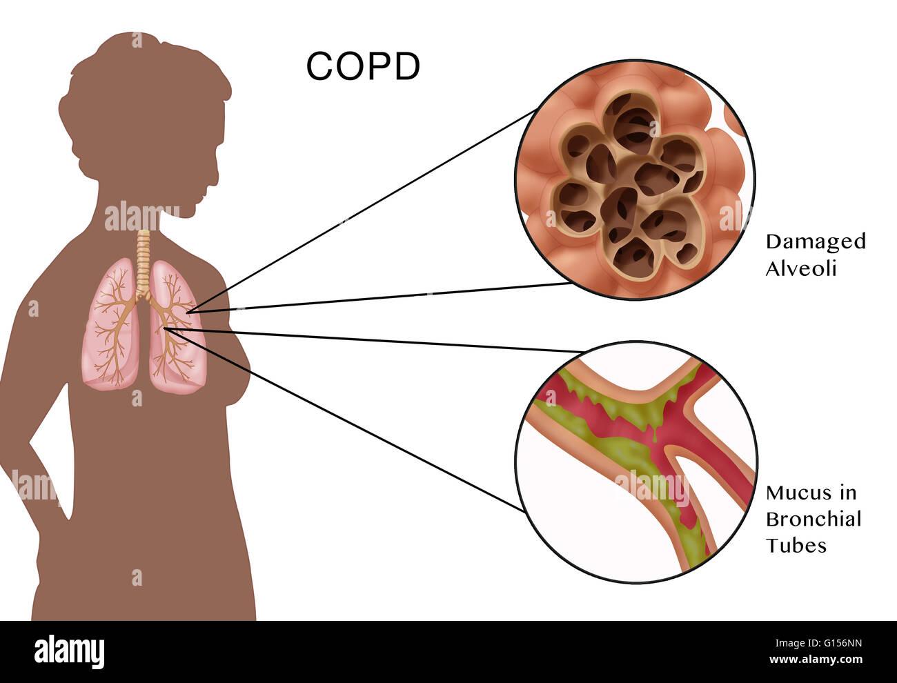 Illustration de la bronchopneumopathie chronique obstructive (BPCO ...