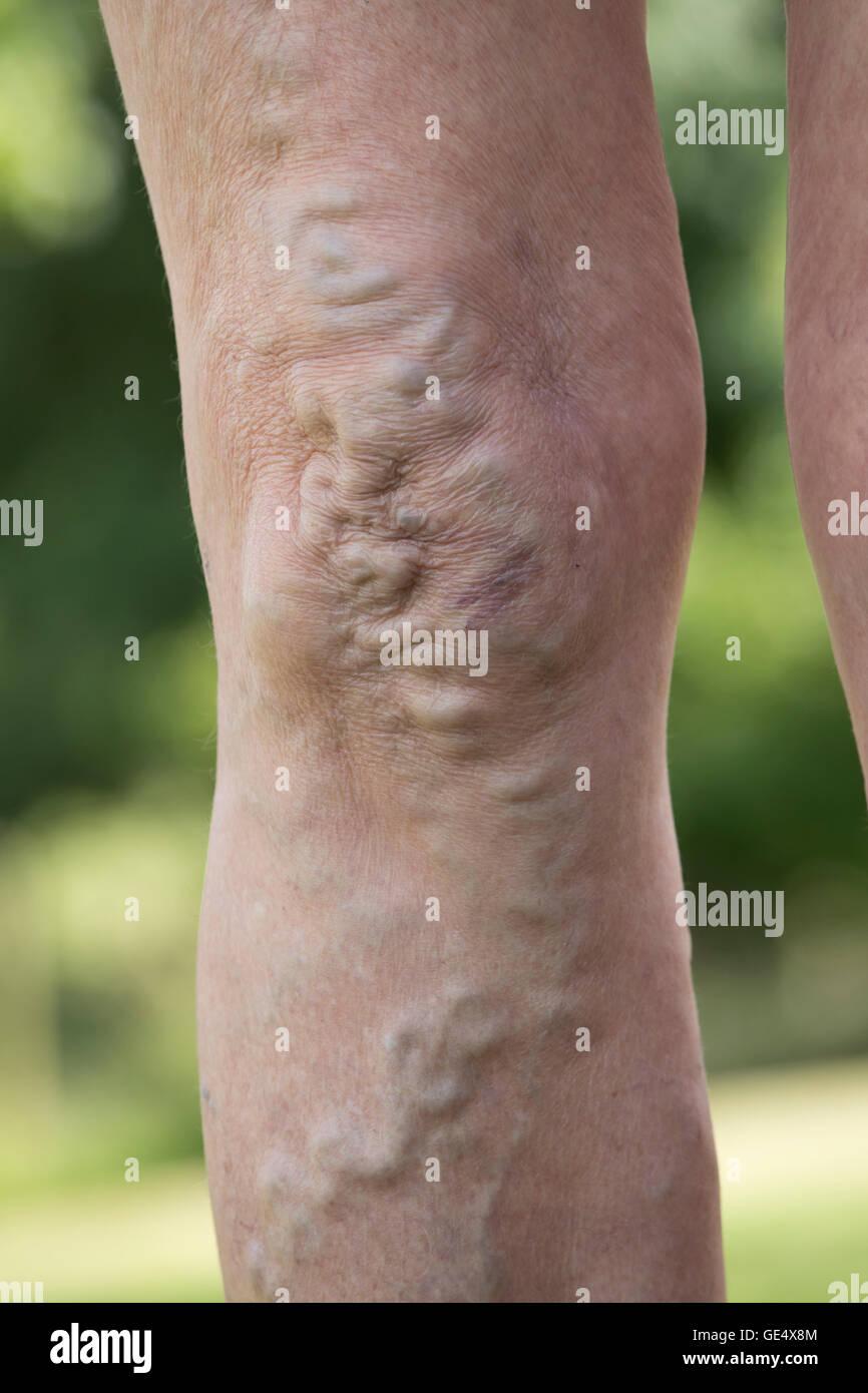Swollend varices veines élargie et la peau déformée dans les genoux et les jambes d'une femme Photo Stock