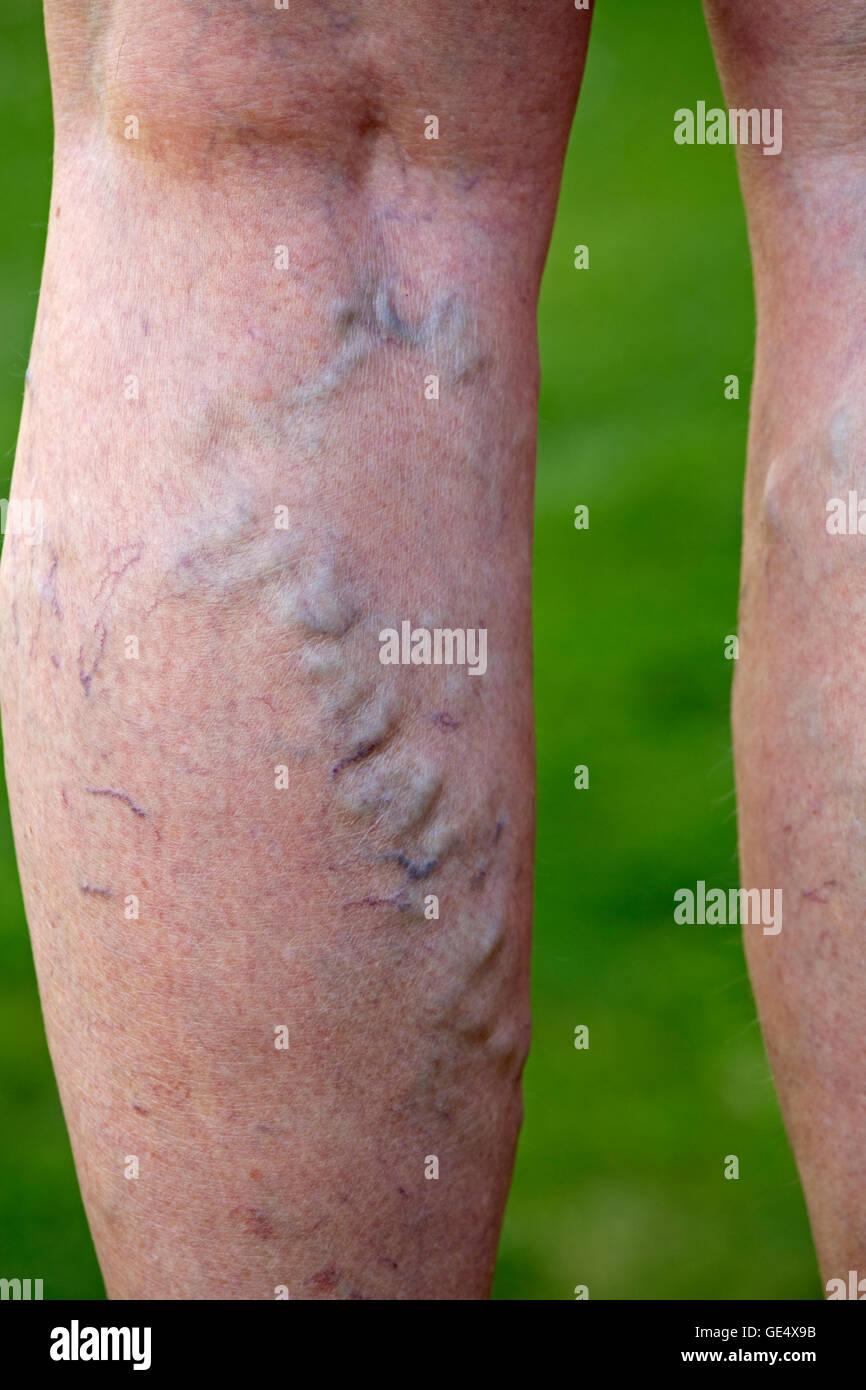 Varices veines enflées et élargie de la peau déformée dans les jambes femme âgée uk Photo Stock