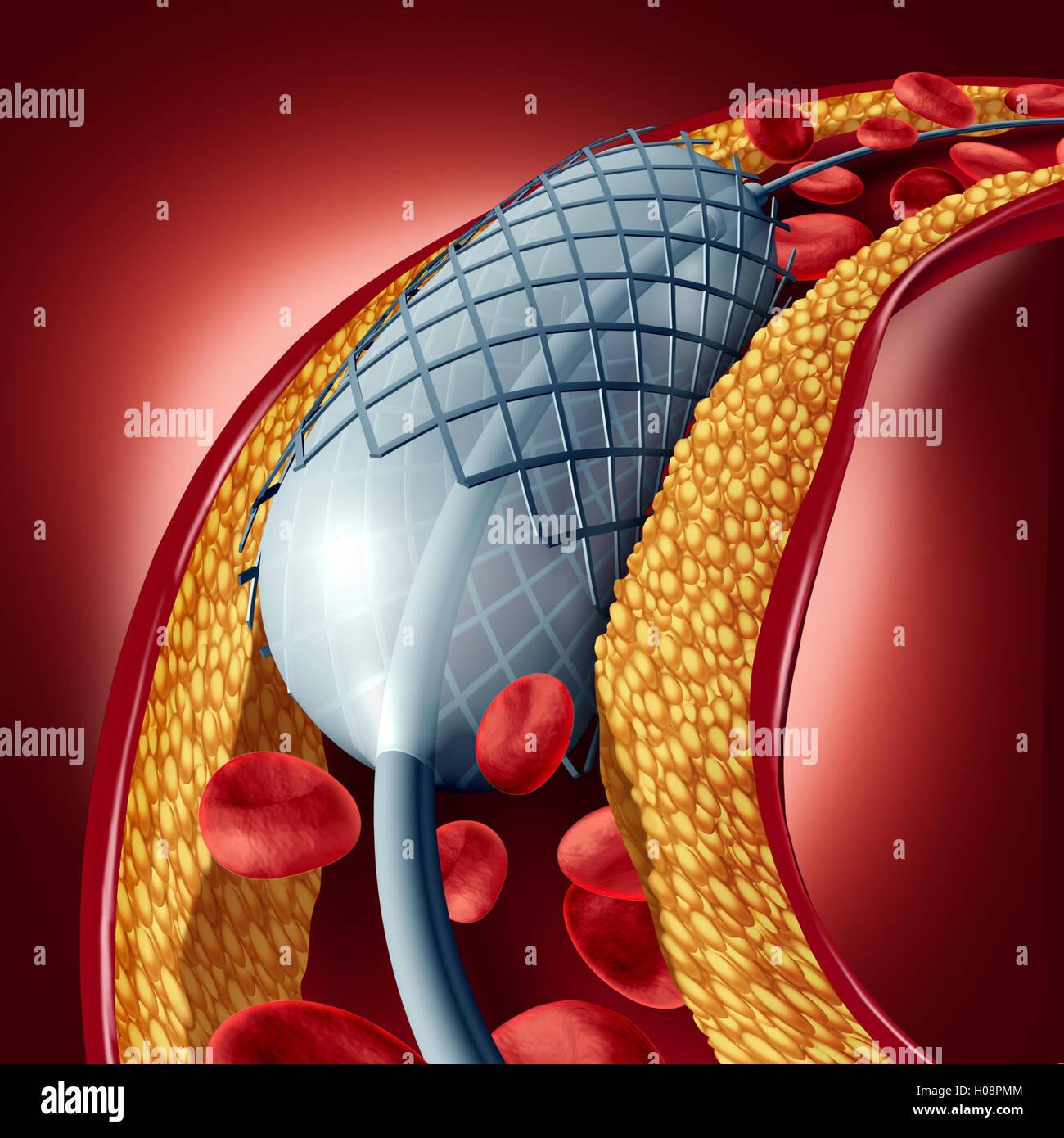 Angioplastie et stent concept comme une maladie du cœur symbole de traitement avec un implant dans une artère Photo Stock