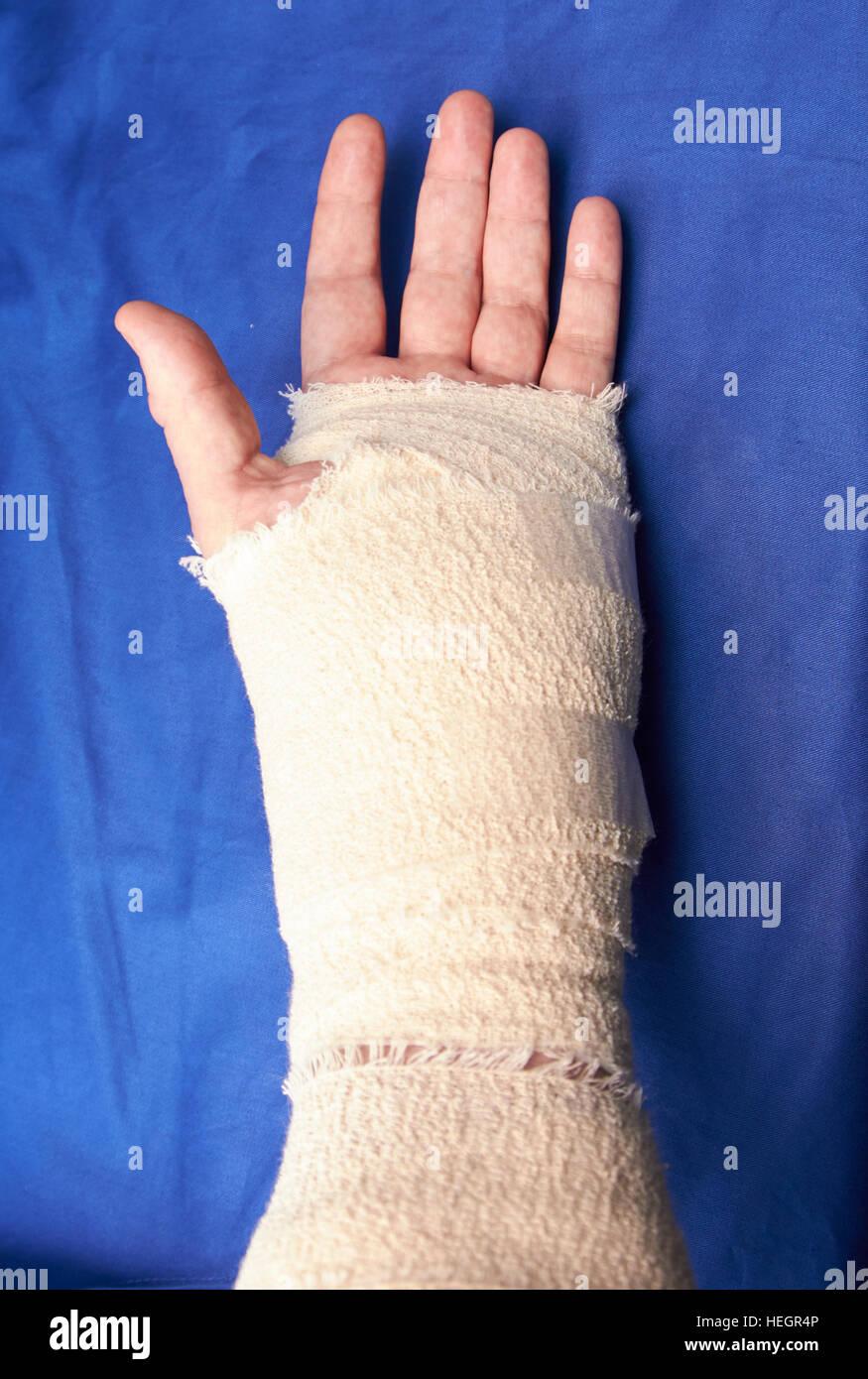 La main gauche bandée après chirurgie du canal carpien blessures Photo Stock