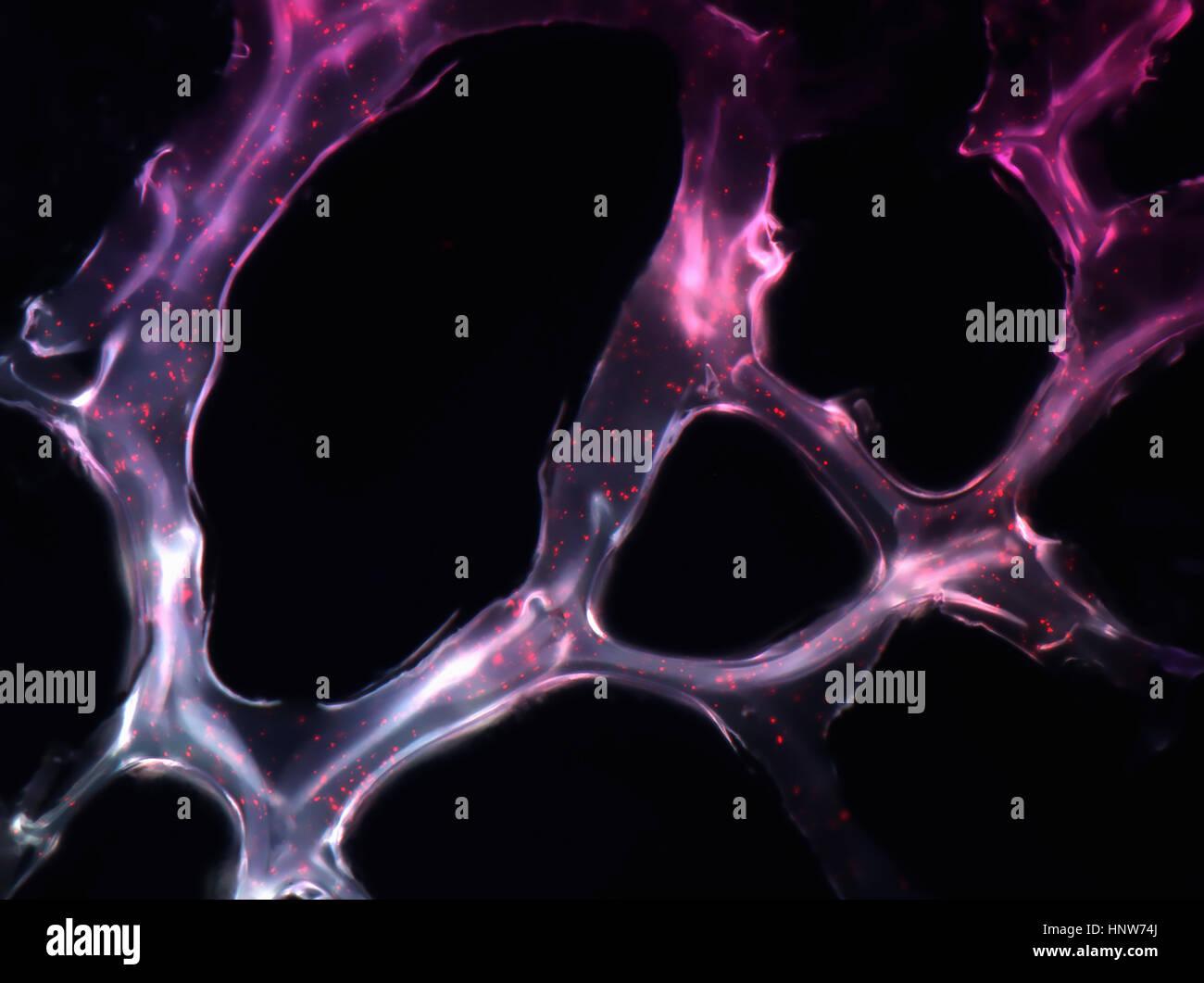Les nanoparticules auto-assemblées exerçant son micro RNAs de tumeur du sein dans un modèle de souris et coller à la cible tumorale Banque D'Images