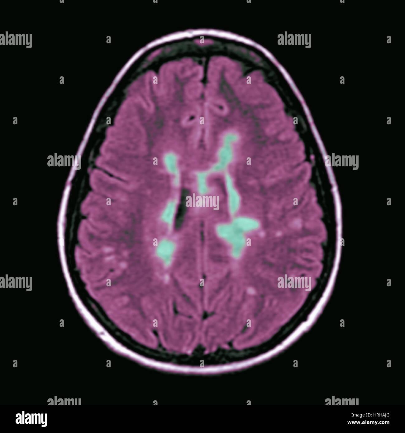 L'IRM de la sclérose en plaques Photo Stock