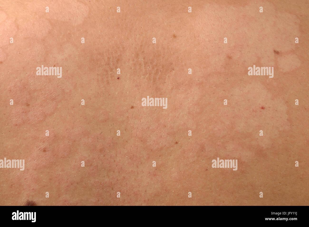 Détail de champignon de la peau retour Banque D'Images