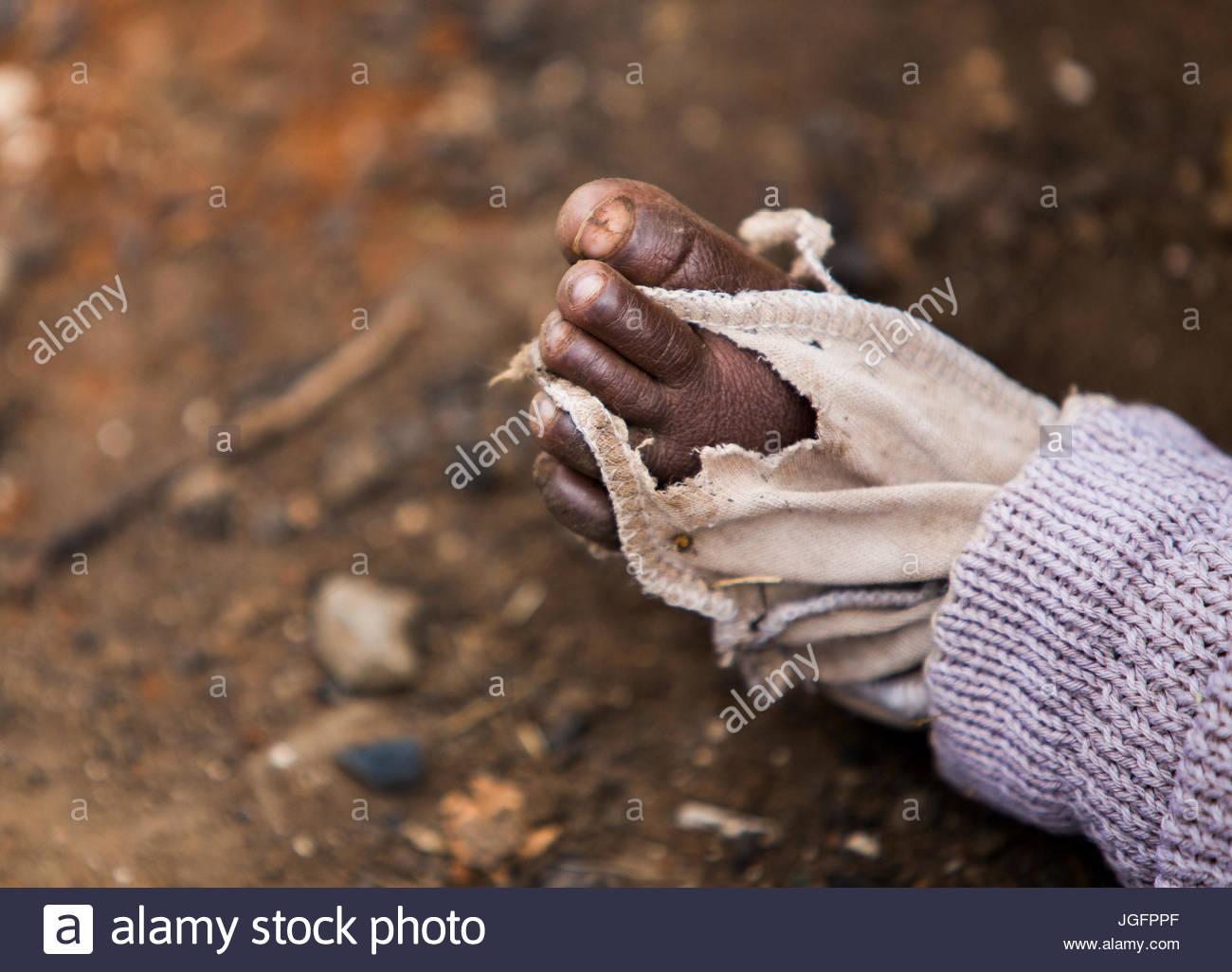 Le pied de l'enfant est enveloppée de tissu en l'absence de chaussures. Photo Stock