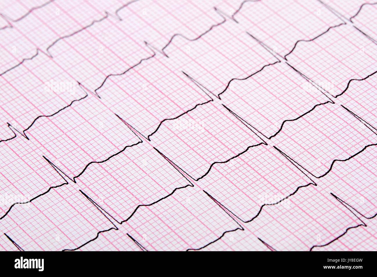 Close up d'un électrocardiographe également connu sous le nom d'un graphique ou d'ECG EKG Photo Stock