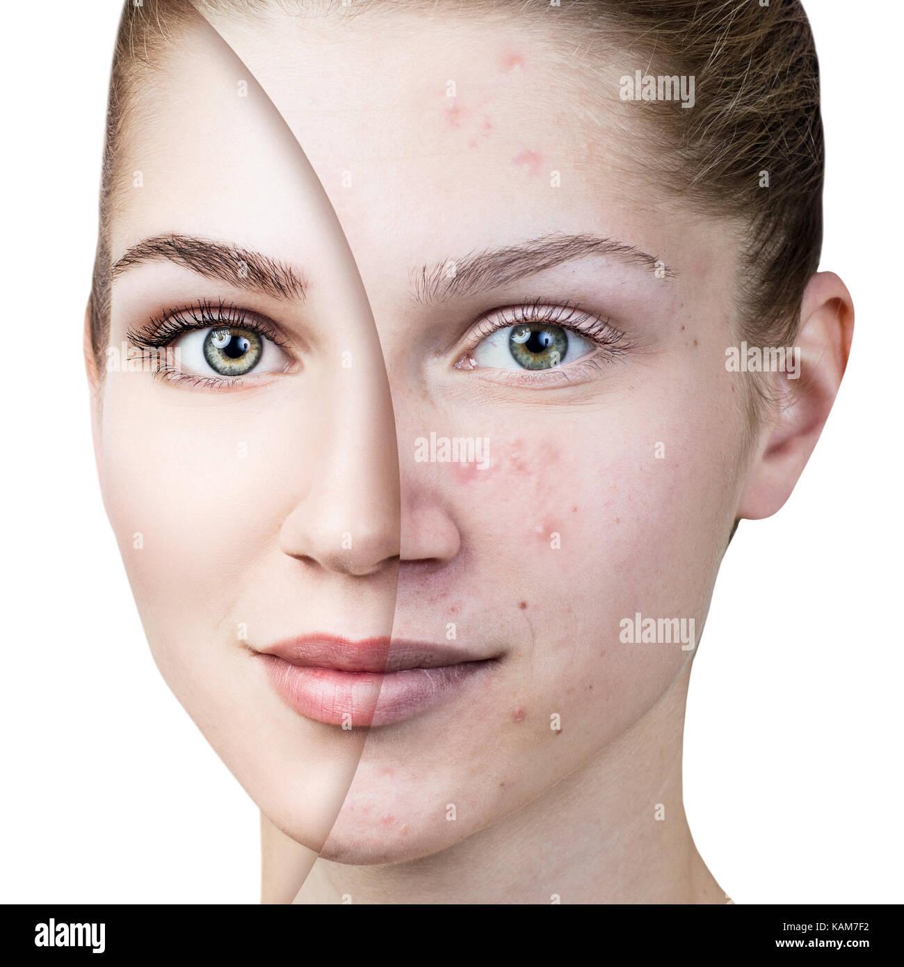 Jeune femme avec l'acné, avant et après le traitement. Banque D'Images