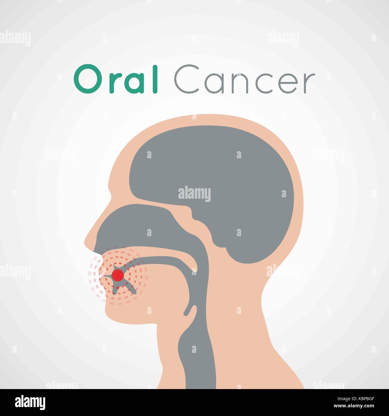Cancer De La Langue Photos & Cancer De La Langue Images - Alamy