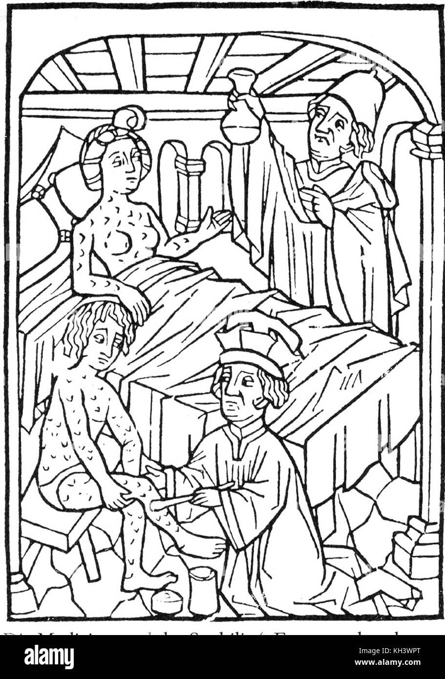 La syphilis. Une illustration médicale précoce des personnes atteintes de la syphilis, Vienne, 1498 Photo Stock