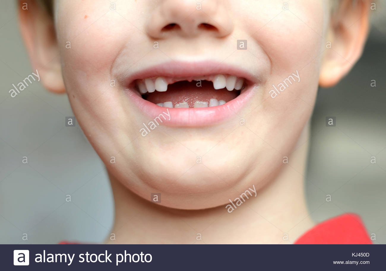 La perte de dents de l'enfant Photo Stock