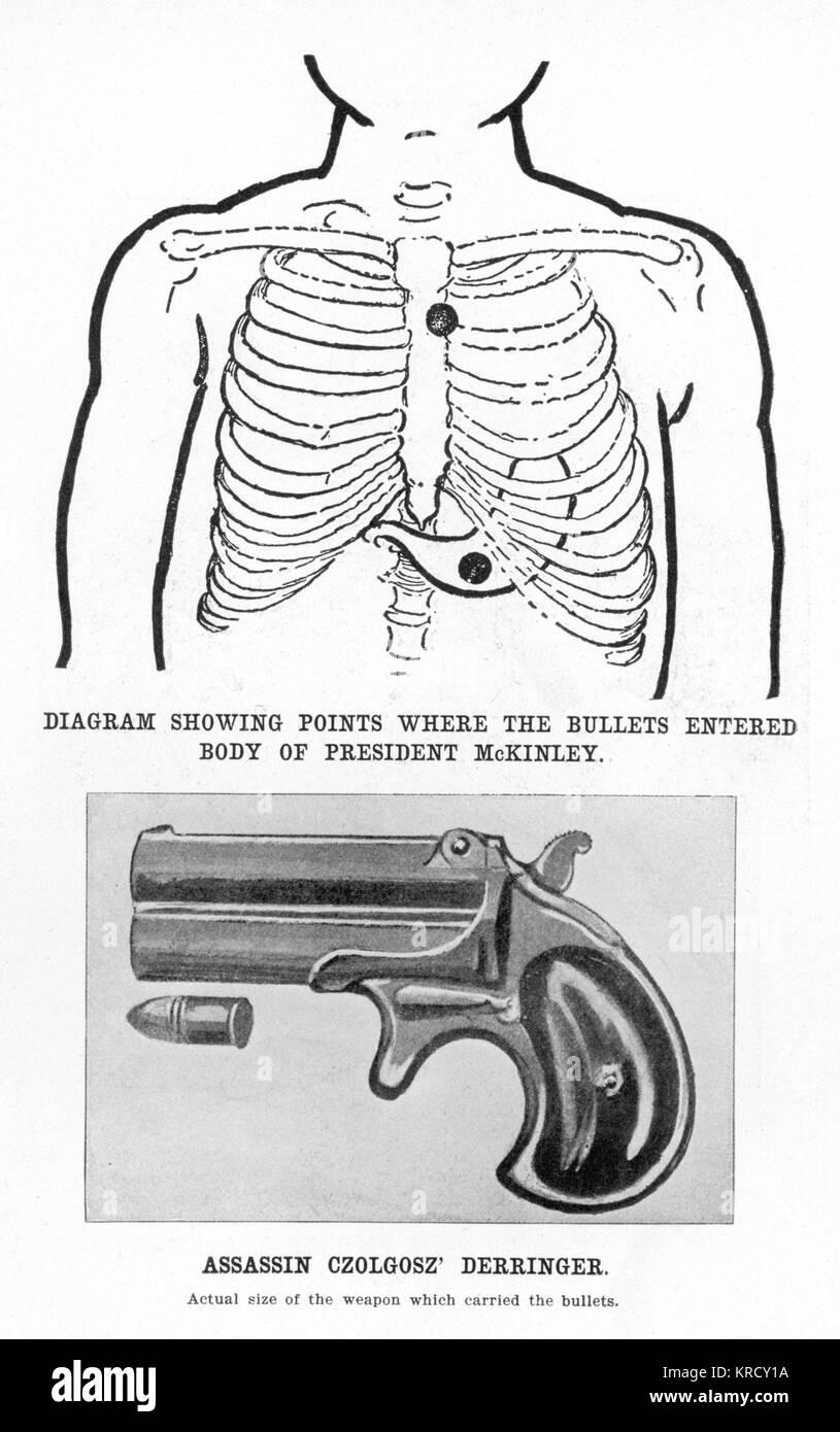 """Assassin, Czolgosz"""" pistolet Derringer et diagramme montrant l'endroit où les deux balles saisi le président McKinley's Banque D'Images"""