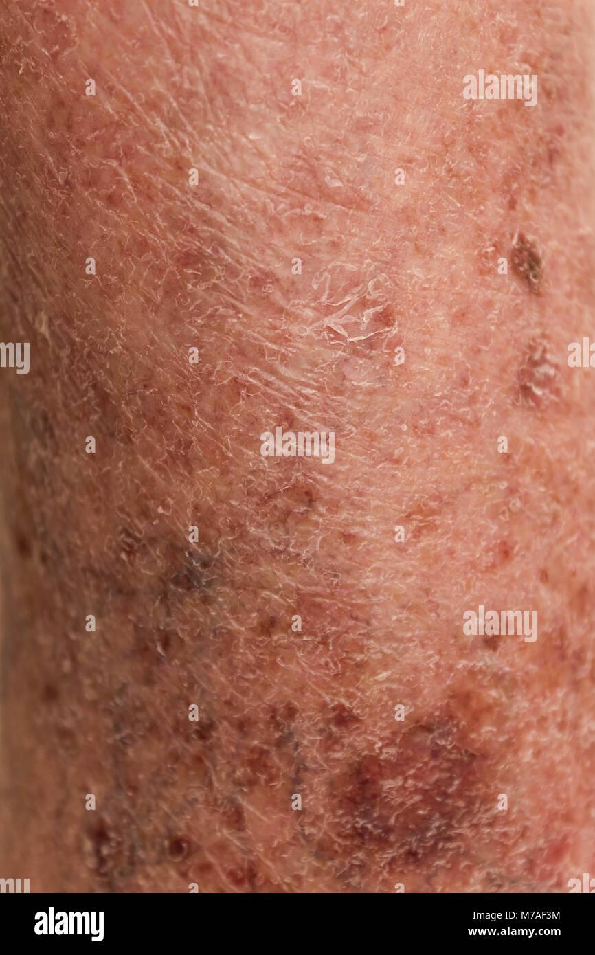 La peau avec des varices Photo Stock