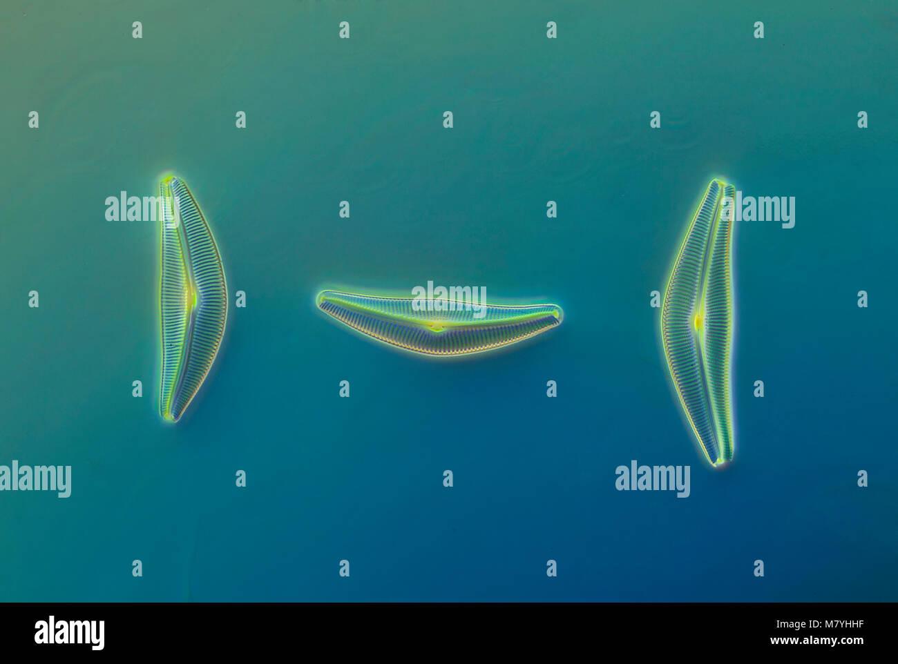 Les diatomées, Cymbella leptoceros Kg var. tumidula, darkfield photomicrographie Banque D'Images