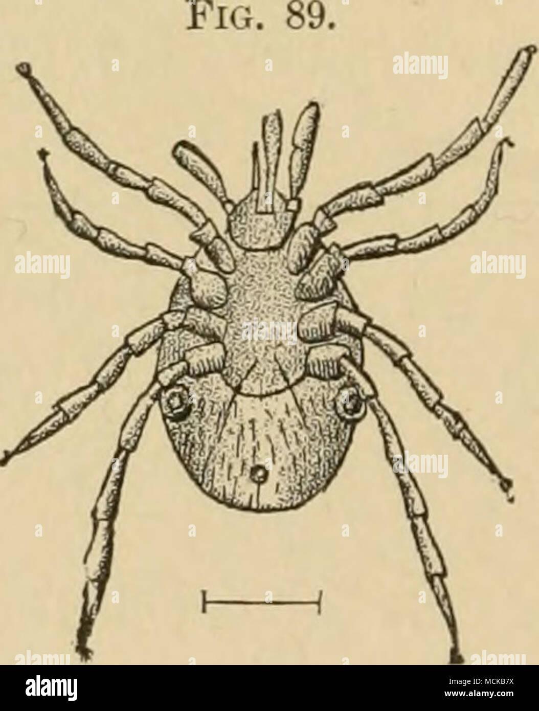 . Ixodes ricinus. L'ac- companying line est la na- ture taille du parasite. (KUCHENMEISTEE-ZURN.) Ce parasite, qui est d'environ 2 mm de longueur, et parfois quand plein cultivé presque 3 mm., ressemble beaucoup à un acari (Fig. 89). Il pénètre dans la peau Photo Stock