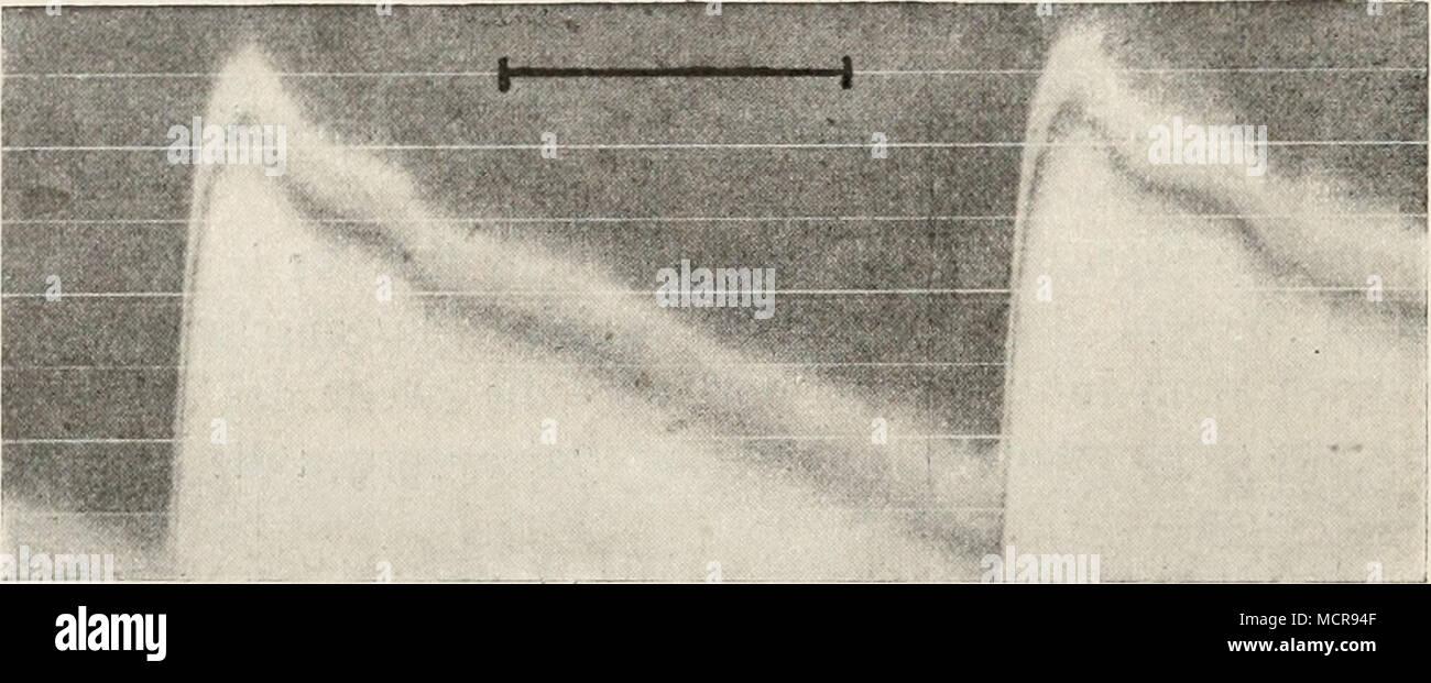 . Fig. 421. Puls der A. fémorale des Kaninchens. Nach C Tigerstedt. Liens von nach rechts zu lesen. 3. Sind zu dieser Gruppe mit Kurven Verlauf trapezartigem. Zeigen Sie einen steilen systolischen Druckanstieg, ein gut ausgeprägtes, mehr oder weniger Plateau horizontales, une scharfeDrucksenkung Inzisur auftretende darauf(), welche von der Welle nachgefolgt dikrotischen ausgedehnten lang wird (vgl. Fig. 422). Silver finden sich zwischen diesen, wie JE JE, alle möglichen rapide selbstverständlich Über- gangsformen, welche indessen hier nicht être- sprochen werden können. - • Ich bemerke, dass Kurv Photo Stock