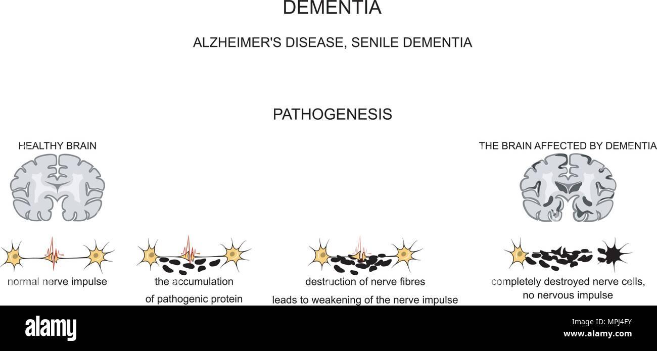 La maladie d'Alzheimer, les changements séniles du cerveau Vecteurs ...