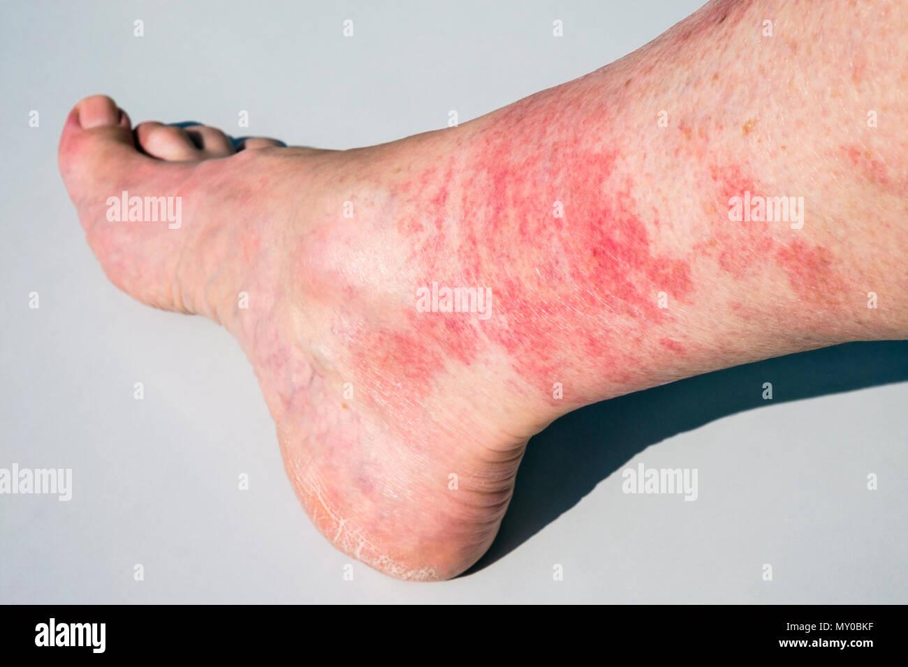 chaud pieds matures pics noir bas sexe films