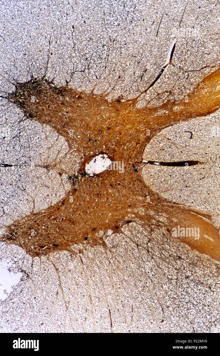 Neurone multipolaire du cordon médullaire. Les tissus nerveux 14x Photo Stock