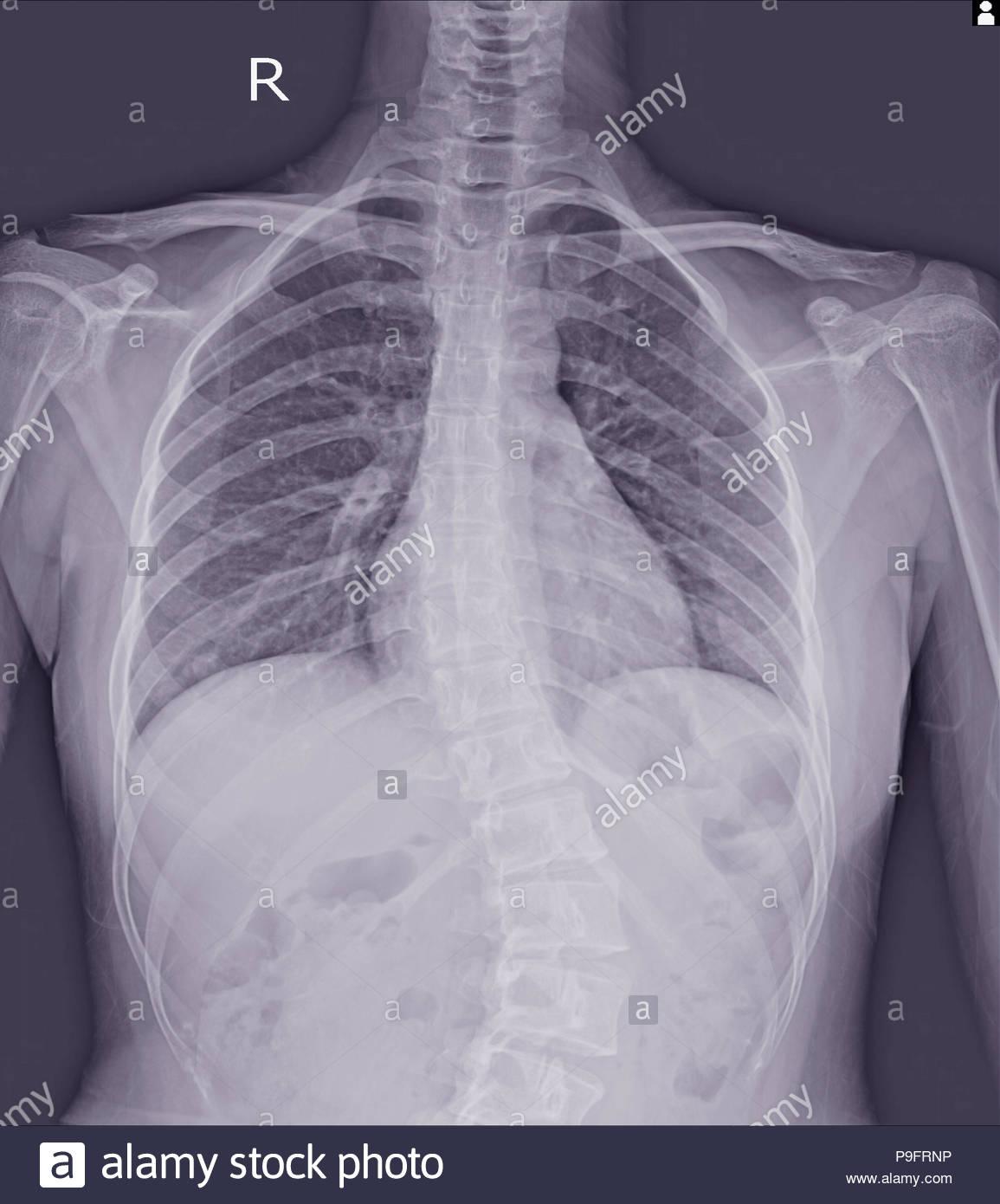 La scoliose film x-ray afficher la courbure de la colonne ...