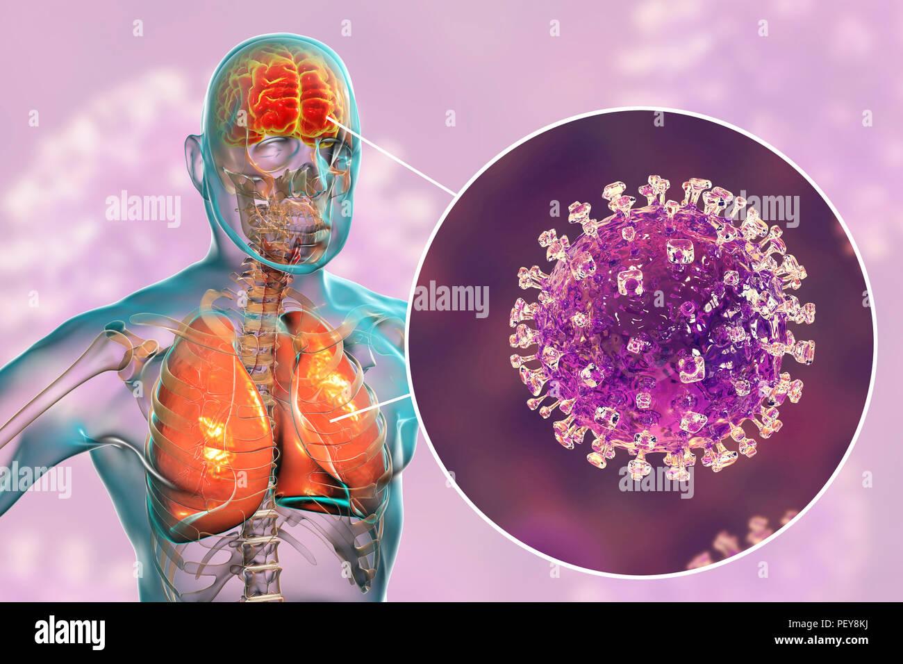 L'encéphalite et la pneumonie causées par les virus Nipah, illustration de l'ordinateur. Le virus Nipah est une zoonose (transmises aux humains par les animaux) et a été découvert en Malaisie et Singapour dans les personnes qui ont eu un contact étroit avec les porcs. Il a d'abord été isolé en 1999 en examinant les échantillons provenant d'une éclosion de maladies respiratoires et de l'encéphalite chez les hommes adultes dans ces deux pays. Photo Stock