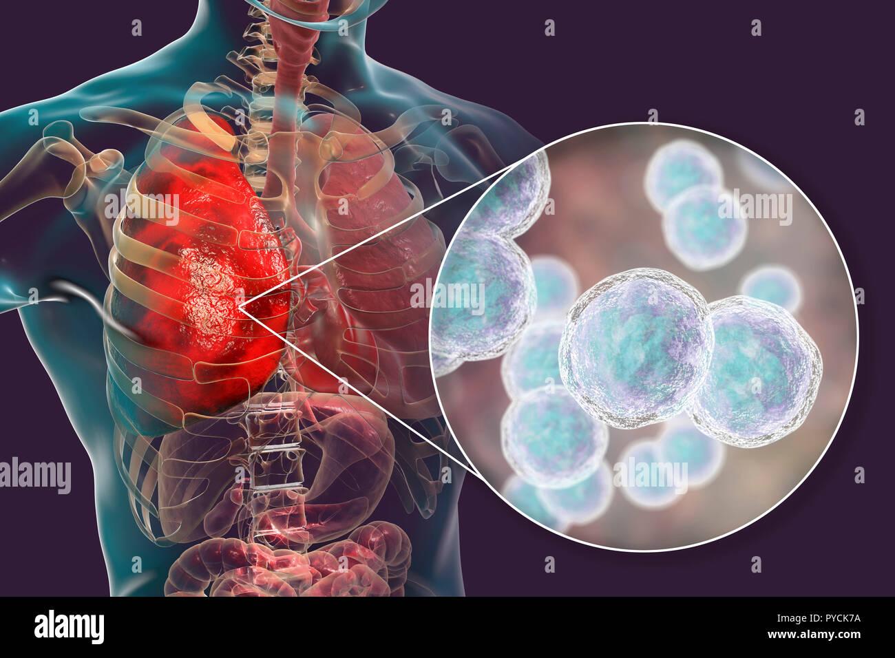 La pneumonie causée par une bactérie Moraxella catarrhalis, illustration de l'ordinateur. Moraxella (Branhamella) catarrhalis sont aérobies, cocci à Gram négatif (bactéries sphériques). Ils sont généralement trouvés dans les muqueuses des voies respiratoires de mammifères, y compris l'homme. Chez les sujets immunodéprimés, ou de manière opportuniste, ils peuvent causer des infections des voies respiratoires, y compris la pneumonie. Photo Stock