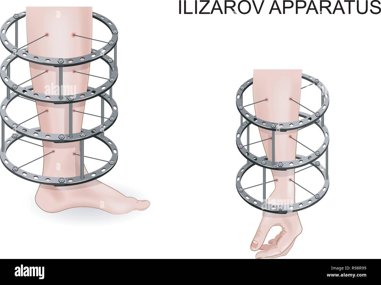 Vector illustration de l appareil d Ilizarov pour le traitement des  fractures des os ab87933e60c