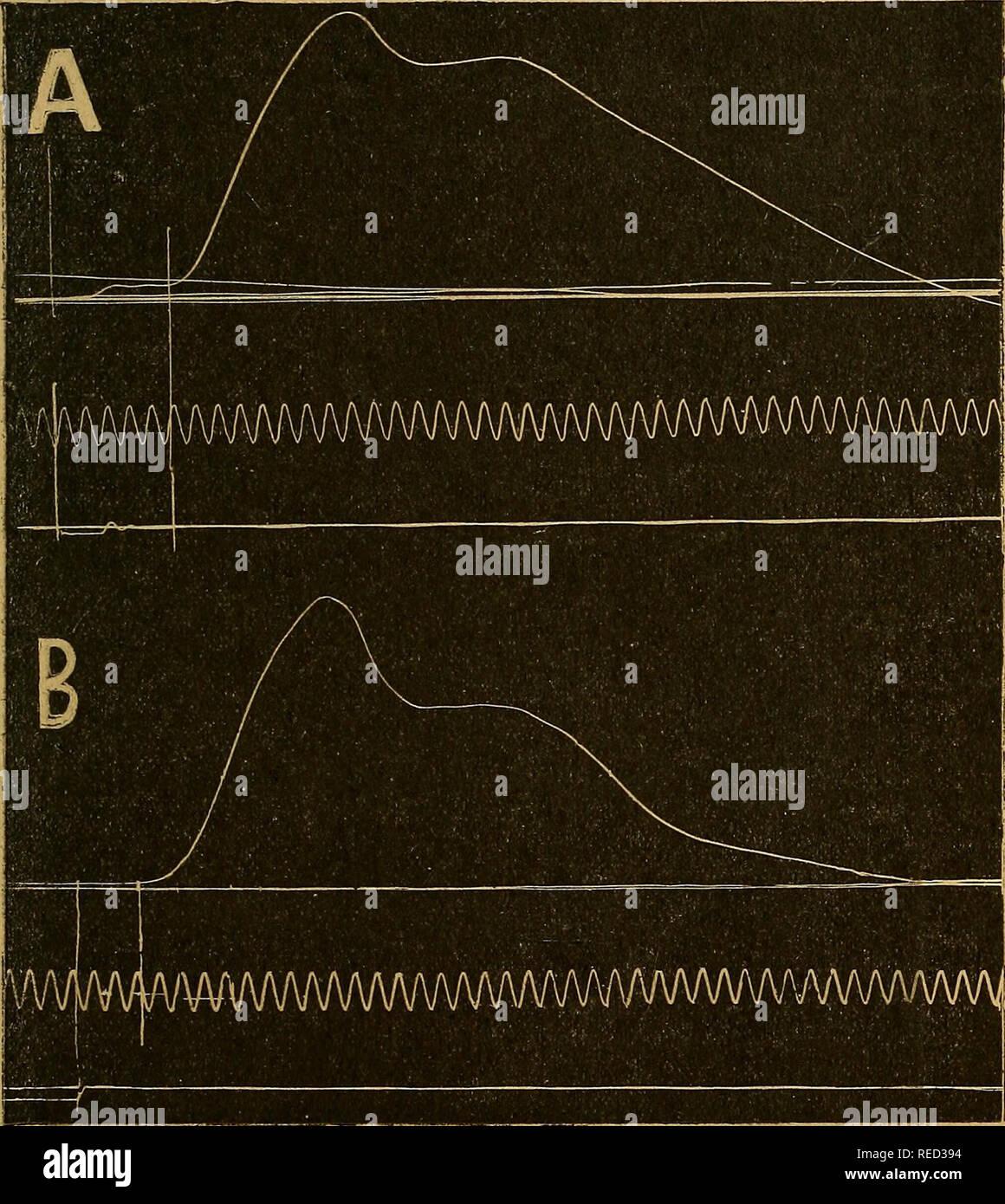 . Comptes rendus des séances de la Société de biologie et de ses filiales. La biologie. (39) SÉANCE DU I MARS 540 l'homme et chez le chien, dans le cas d'activité motrice directe provoquée par l'électrique d'excitation du nerf du muscle ou de son moteur. Chez l'homme, de notre technique a consisté à porter l'excitation faradique sur la cuisse du sujet, soit par le bouton même du myo-. Fig. i. Homme: A. Gonflement du quadriceps par choc rotulien. B. Gon- flement du muscle même électrique d'excitation par point du moteur du vaste externe. graphe, soit par une électrode exploratrice distincte, Banque D'Images
