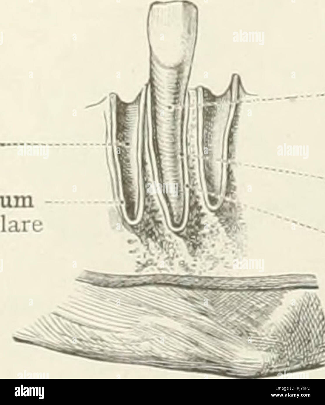 Dent In Septum