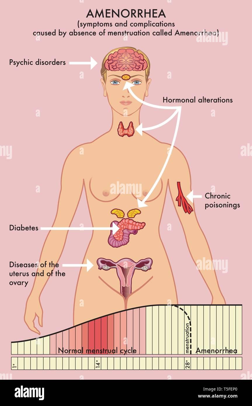 Schéma médical des symptômes et complications causées par l'absence de menstruation appelée aménorrhée. Photo Stock