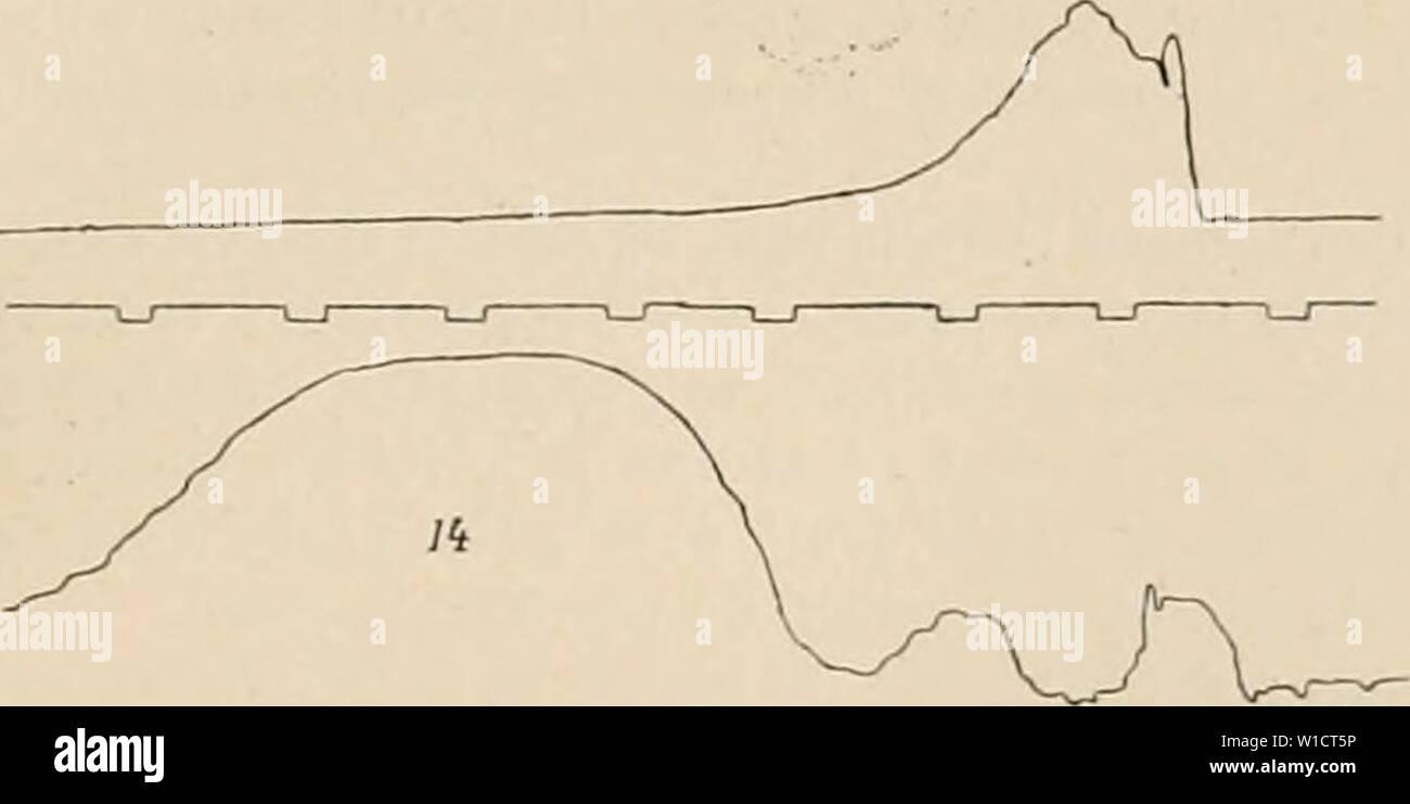 """Image d'archive à partir de la page 744 du Dictionnaire de physiologie (1900). Dictionnaire de physiologie . dictionnairedeph04riche Année: 1900 FiG. 89. Â7. Dt'glutition d'une masse semi-liquide. Le tracà supÃ- rieur provient du pliarynx, l'infÃrieur est obtenu au moyen d'un ballon enfoncà centimèà 12 tres. La deuxià ¨ me ÃlÃvation renvoyÃs provient de restes alimentaires par le pharynx. est imputable à l'action des constricteurs du pliarynx. Ce mode de progression du bol appartient aussi aux dÃglutitions isolÃes; mais il est incomparablement plus accusà dans les dÃglutitions associÃes. Â"""" (p. 2o2) Arloing Photo Stock"""