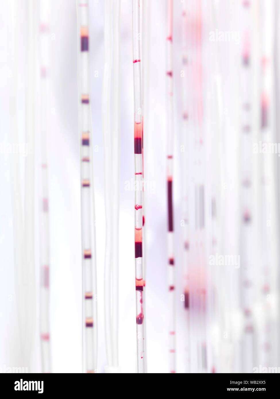 Tubes en passant par le sang au cours du traitement. Banque D'Images