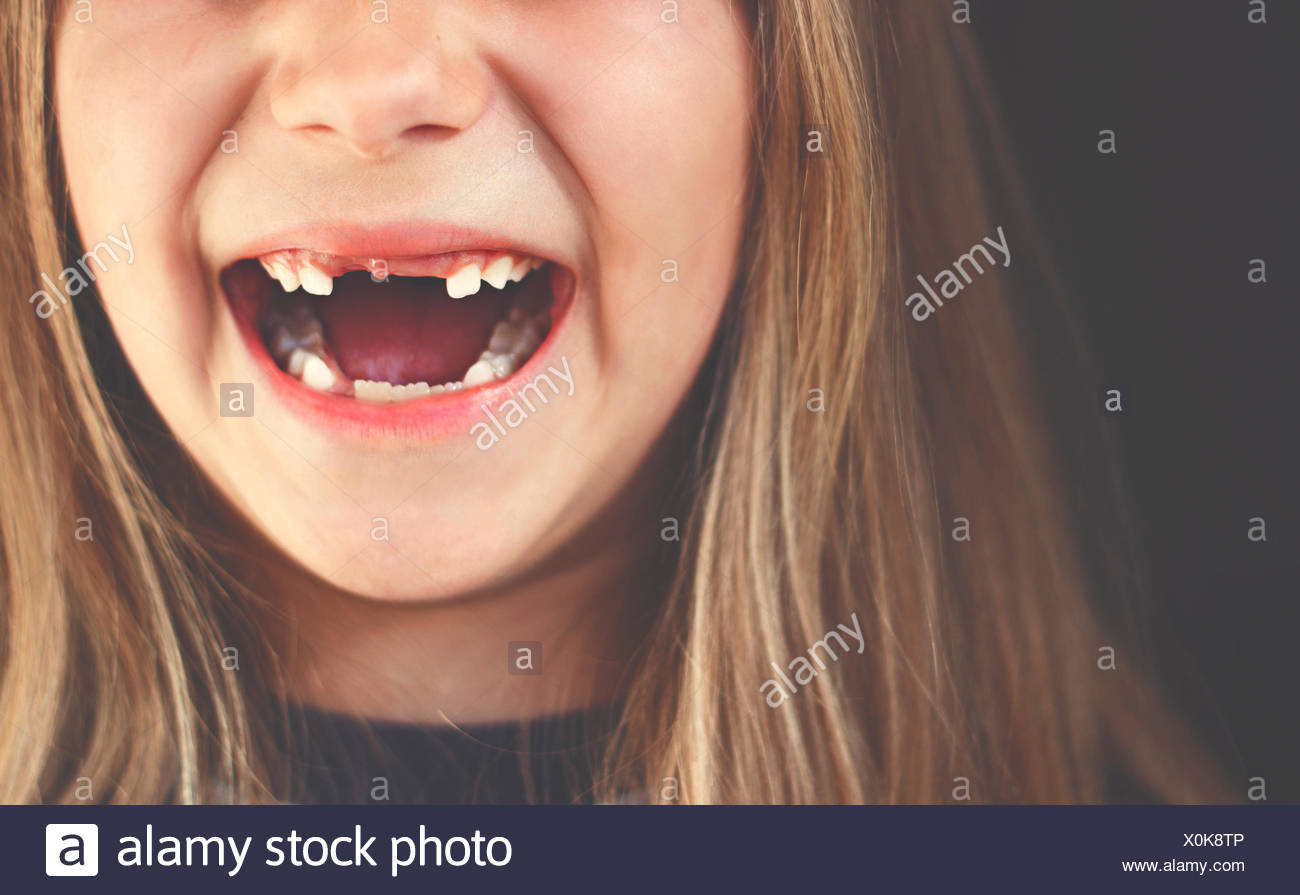 Close-up of a Girl laughing crantée gap Photo Stock