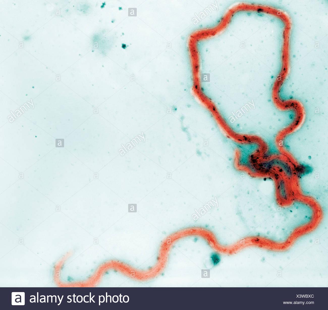 Photomicrographie de bactérie Treponema pallidum Banque D'Images