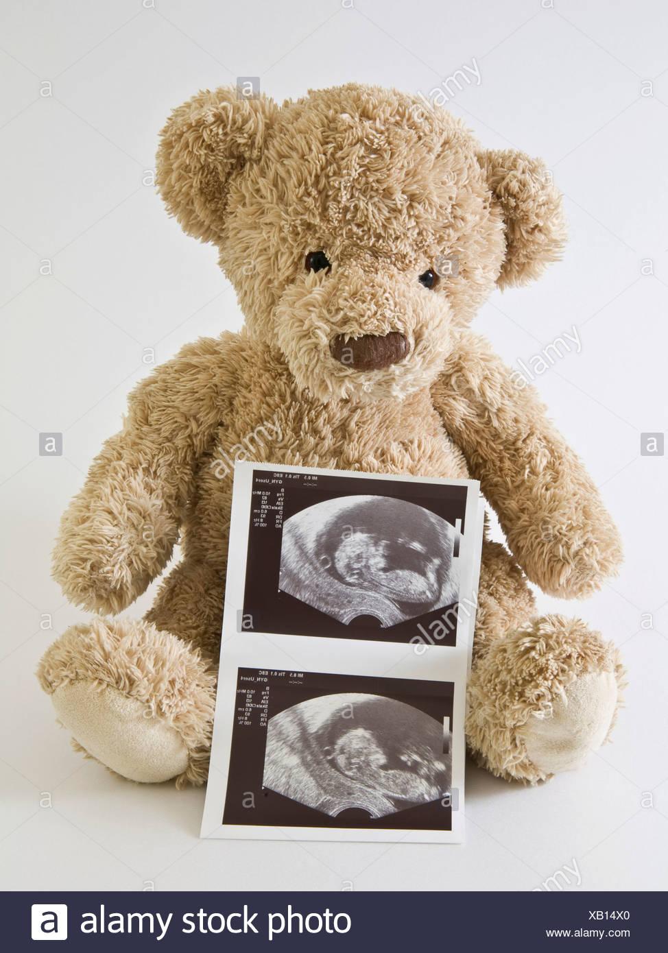 Ours en peluche avec ultrasonograms Photo Stock