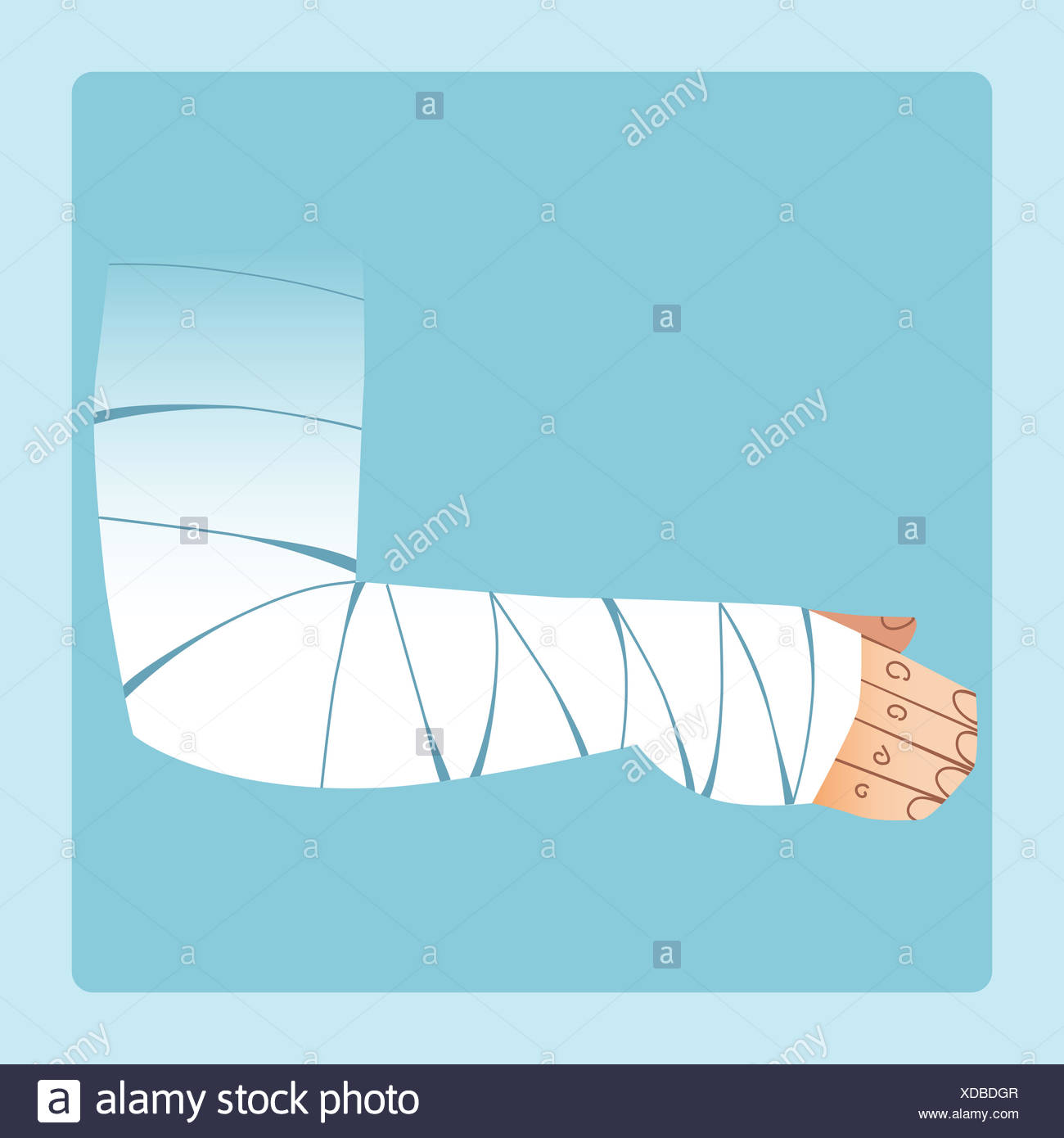 La main bandée après rupture ou d'une blessure Photo Stock